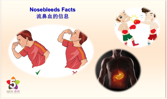 Nosebleeds Facts